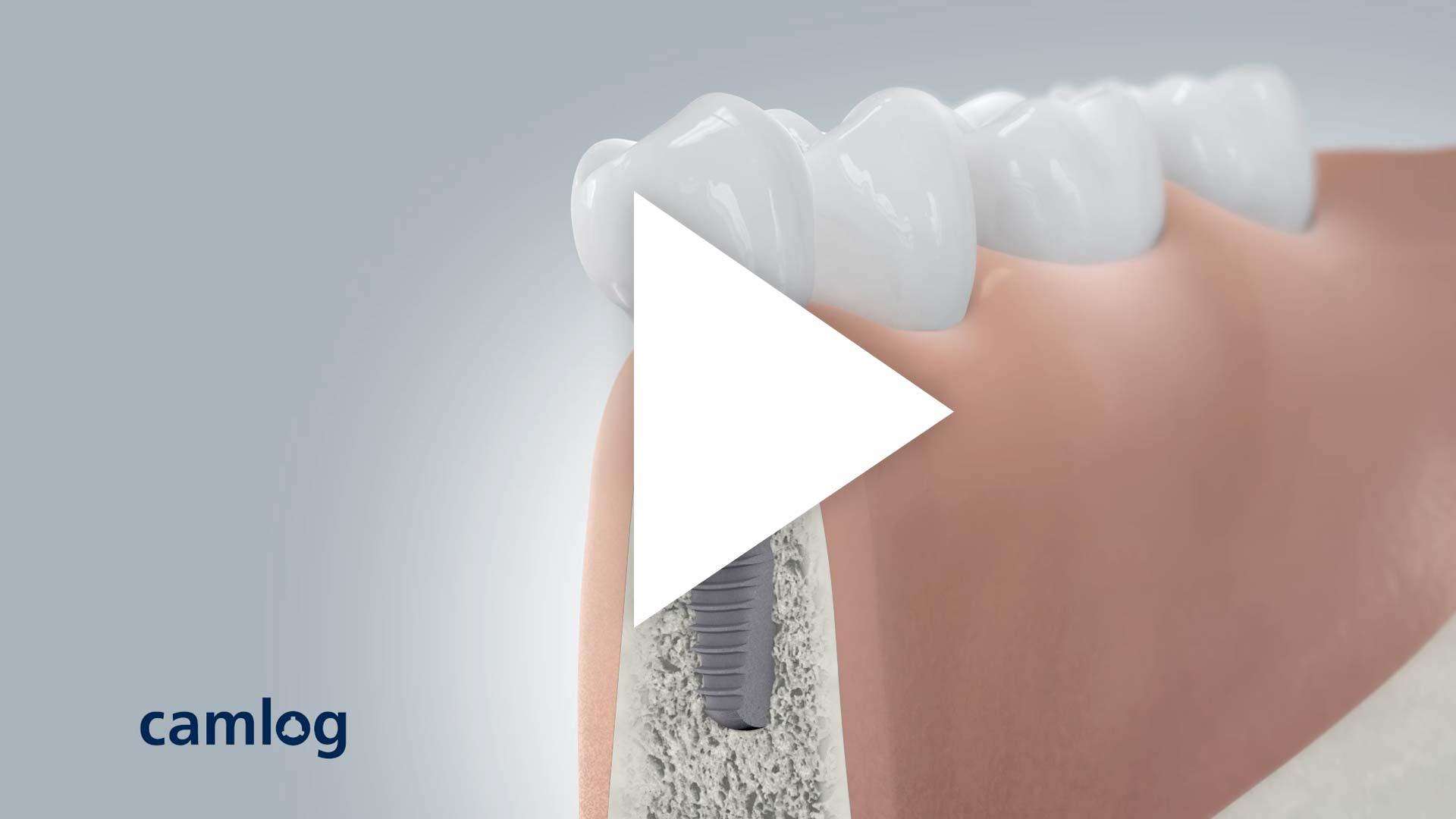 CAMLOG 3D Implantation