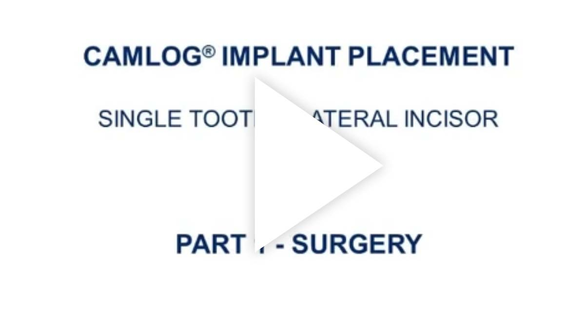 CAMLOG 种植牙手术