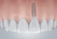 带来美观的单牙修复体