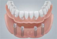 适于固定种植体固位的全口义齿