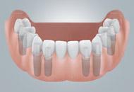 CAMLOG® 基台可用于固定粘接固位和螺丝固位的牙桥